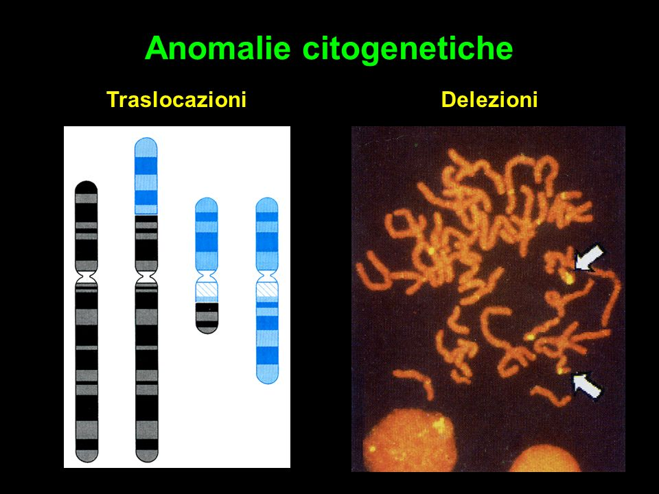 Anomalie citogenetiche Traslocazioni Delezioni