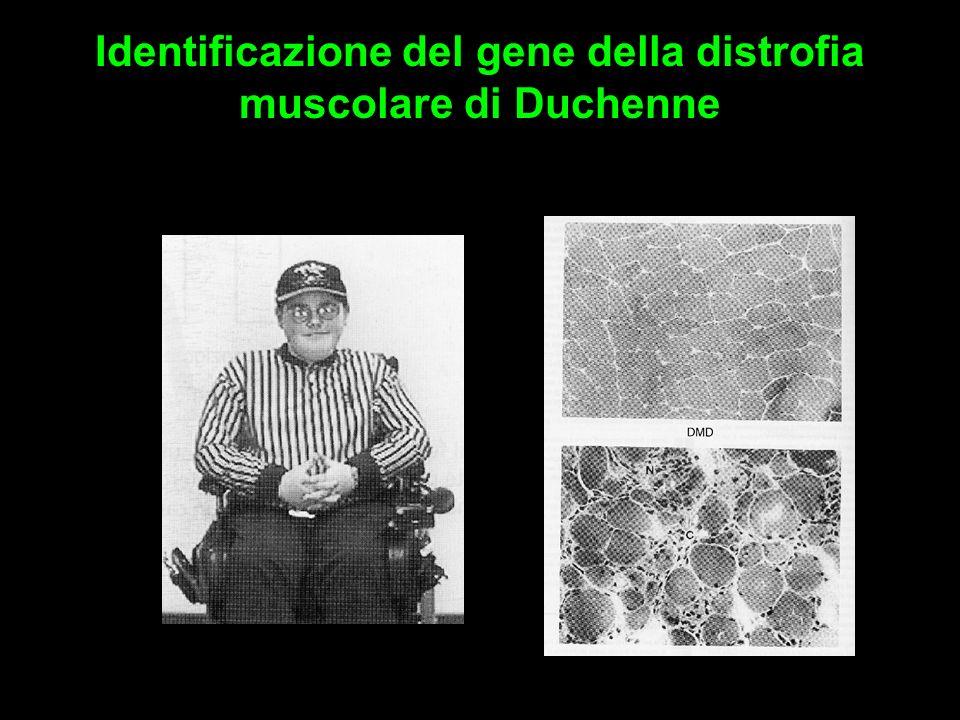 Identificazione del gene della distrofia muscolare di Duchenne