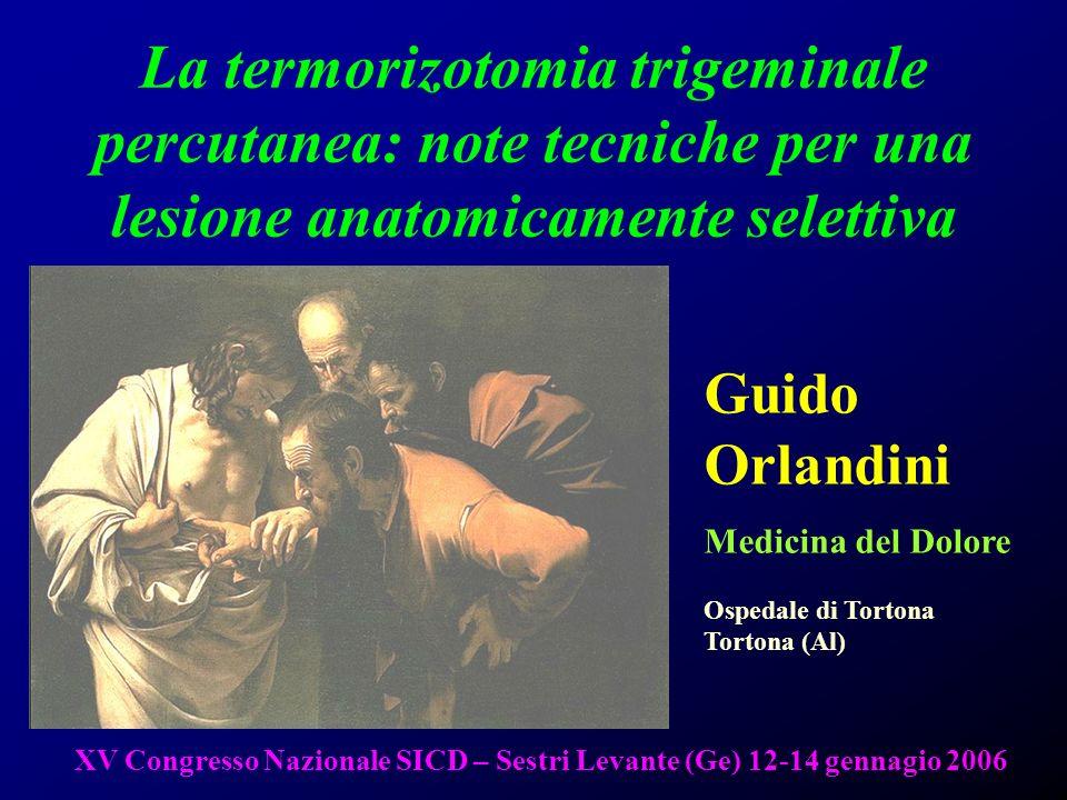 1 La termorizotomia trigeminale percutanea: note tecniche per una lesione anatomicamente selettiva Guido Orlandini Medicina del Dolore Ospedale di Tor