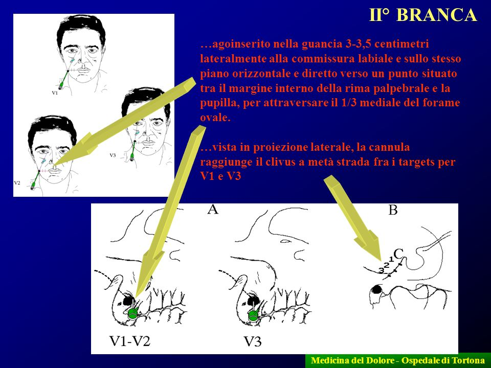 10 Medicina del Dolore - Ospedale di Tortona …agoinserito nella guancia 3-3,5 centimetri lateralmente alla commissura labiale e sullo stesso piano ori