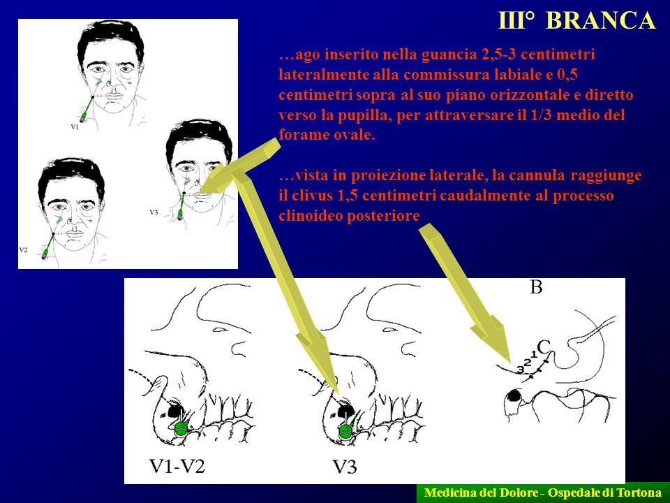 11 Medicina del Dolore - Ospedale di Tortona …ago inserito nella guancia 2,5-3 centimetri lateralmente alla commissura labiale e 0,5 centimetri sopra