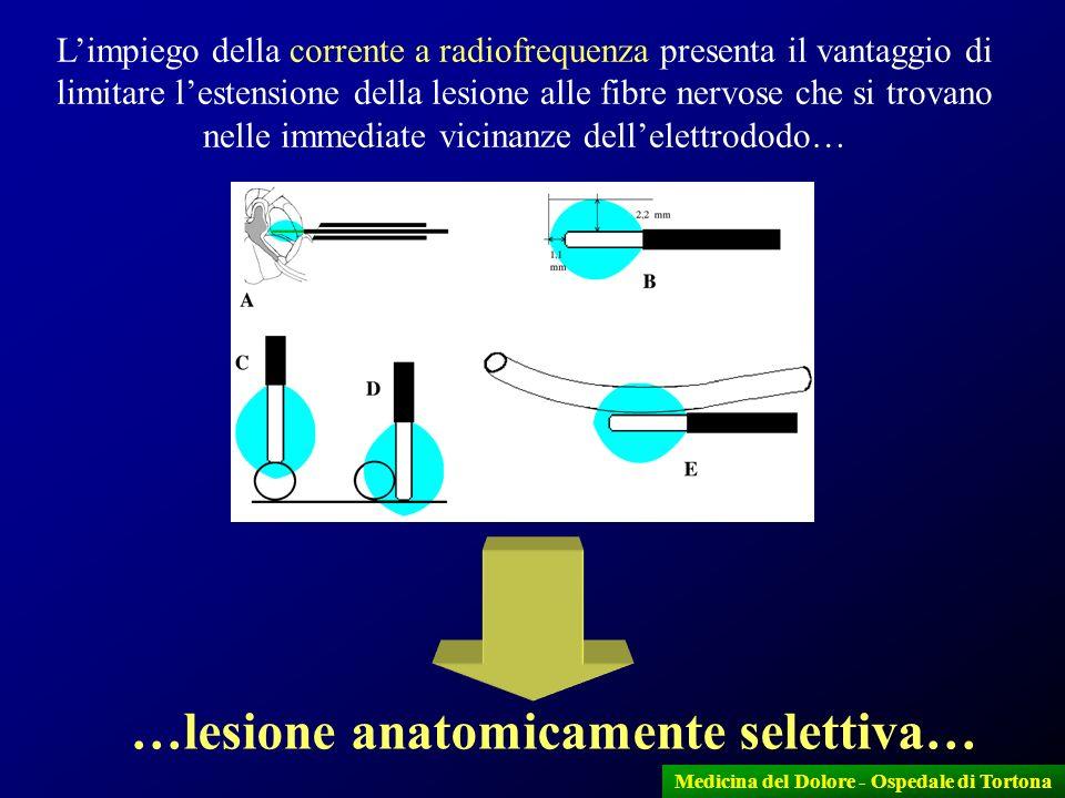 13 Medicina del Dolore - Ospedale di Tortona A = Cisterna nella posizione normale e traiettoria dell ago per raggiungerla B = Cisterna in posizione più posteriore che di norma, in presenza di una terza branca particolarmente lunga