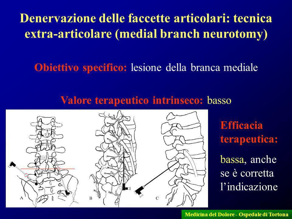 13 Medicina del Dolore - Ospedale di Tortona Denervazione delle faccette articolari: tecnica extra-articolare (medial branch neurotomy) Obiettivo spec