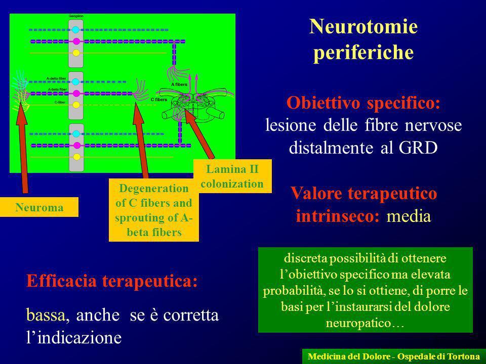 16 Medicina del Dolore - Ospedale di Tortona Neurotomie periferiche Obiettivo specifico: lesione delle fibre nervose distalmente al GRD Valore terapeu