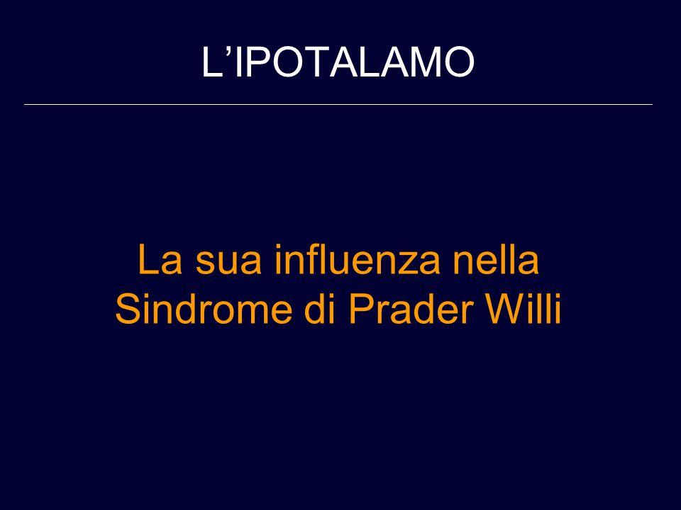 LIPOTALAMO La sua influenza nella Sindrome di Prader Willi