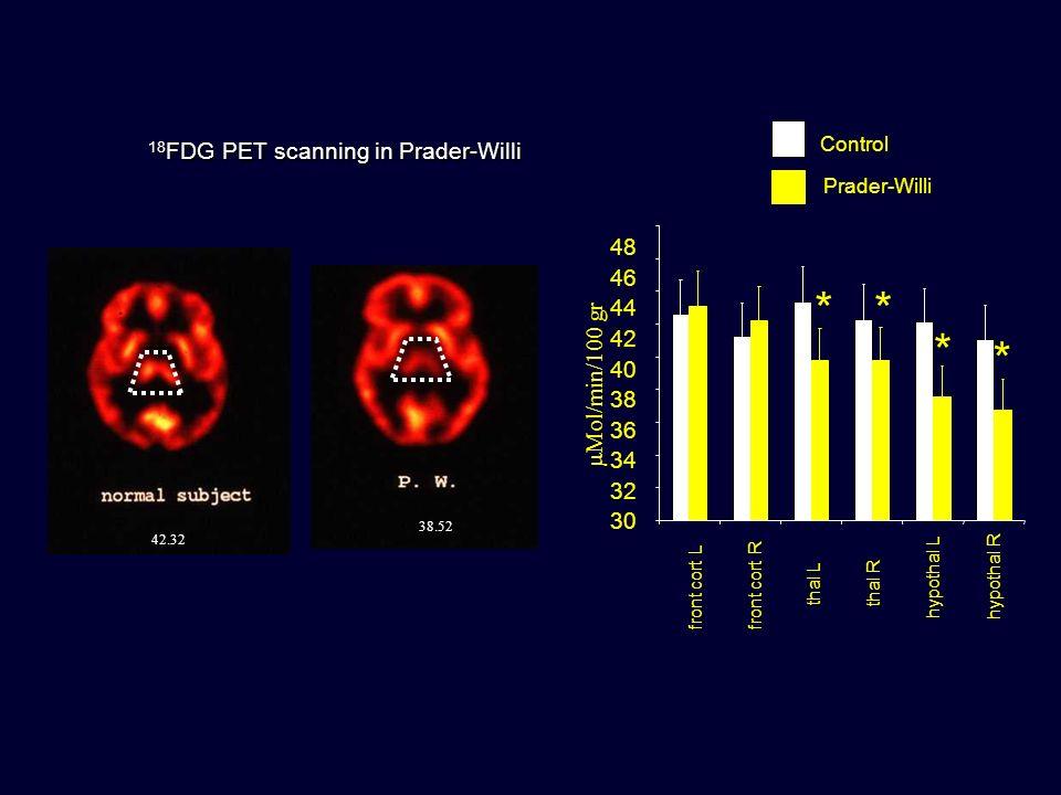 42.32 38.52 18 FDG PET scanning in Prader-Willi * * ** front cort L front cort R thal L thal R hypothal L hypothal R Control Prader-Willi Mol/min/100