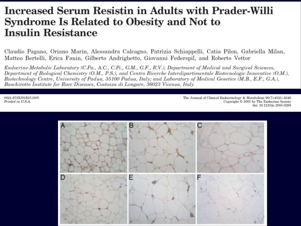 Aumentati livelli circolanti ed espressione di Resistina in pazienti con PWS Pagano C.