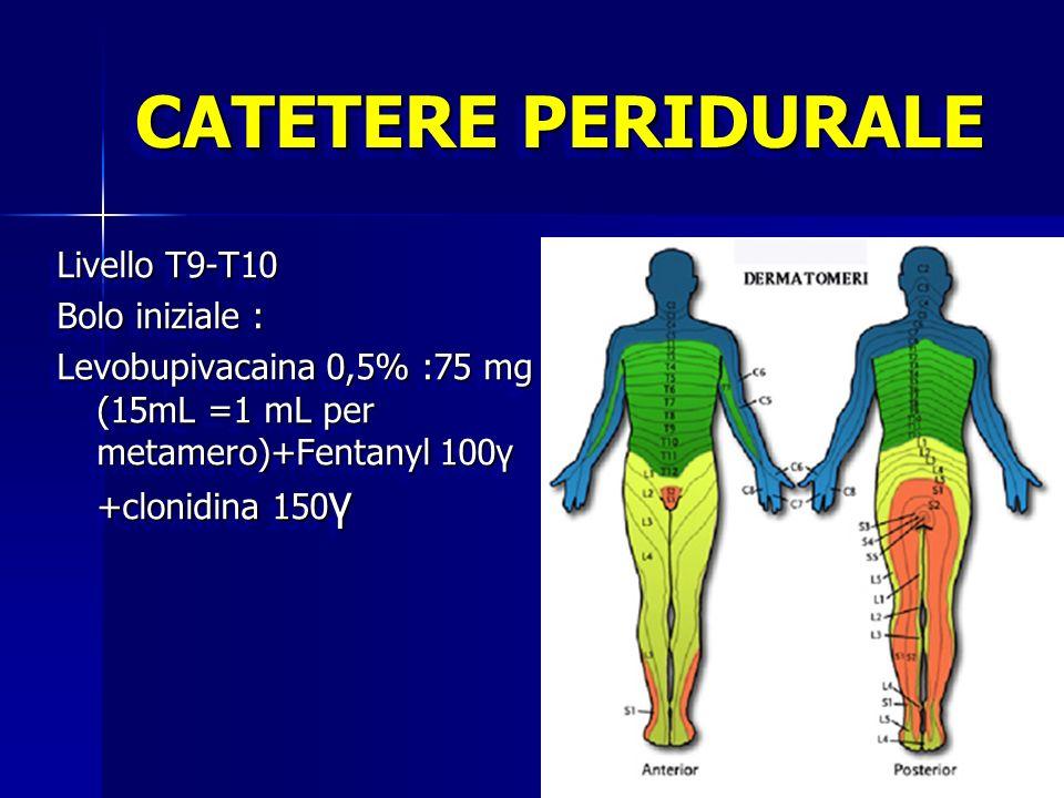 CATETERE PERIDURALE Livello T9-T10 Bolo iniziale : Levobupivacaina 0,5% :75 mg (15mL =1 mL per metamero)+Fentanyl 100γ +clonidina 150 γ Livello T9-T10