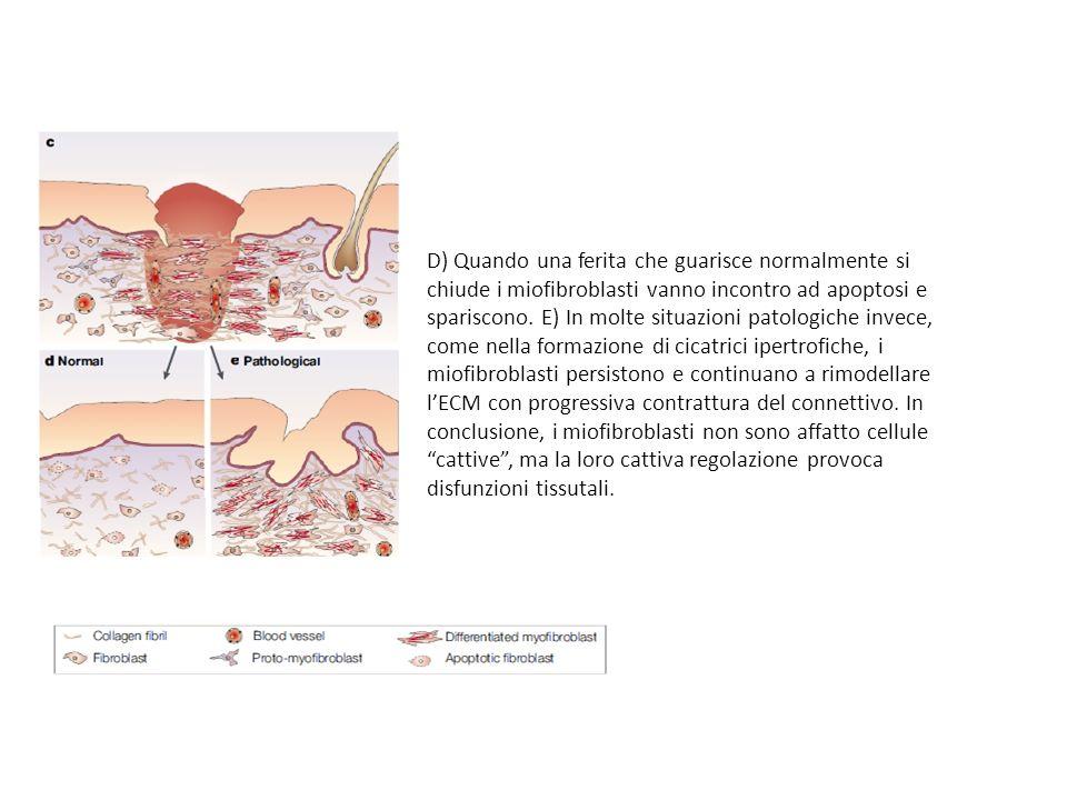D) Quando una ferita che guarisce normalmente si chiude i miofibroblasti vanno incontro ad apoptosi e spariscono. E) In molte situazioni patologiche i