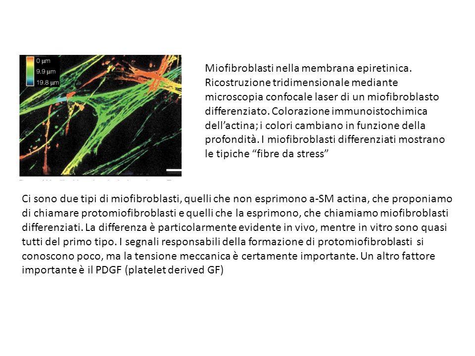 Miofibroblasti nella membrana epiretinica. Ricostruzione tridimensionale mediante microscopia confocale laser di un miofibroblasto differenziato. Colo