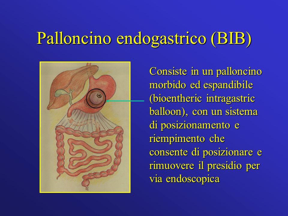 Palloncino endogastrico (BIB) Consiste in un palloncino morbido ed espandibile (bioentheric intragastric balloon), con un sistema di posizionamento e riempimento che consente di posizionare e rimuovere il presidio per via endoscopica