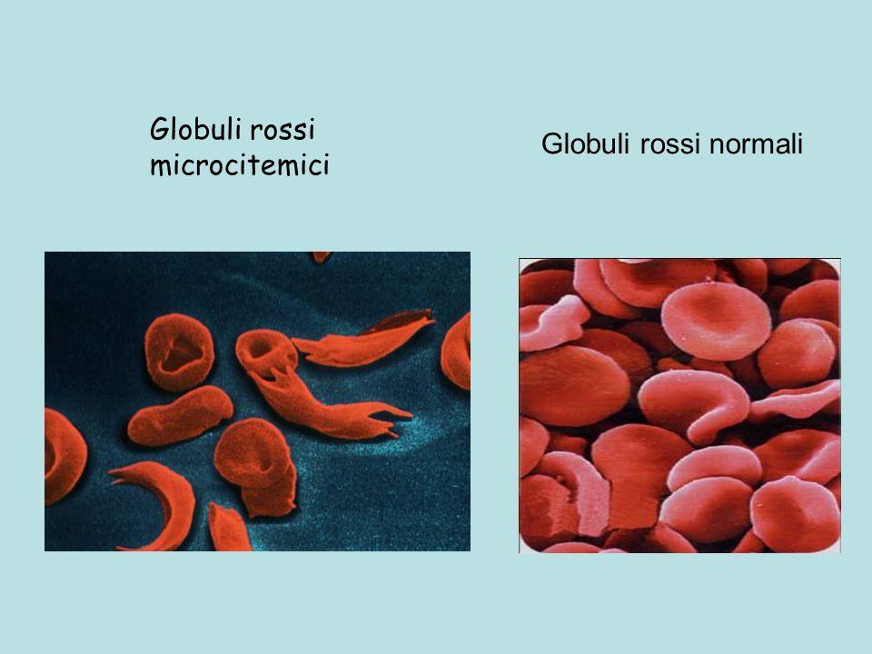 Globuli rossi microcitemici Globuli rossi normali