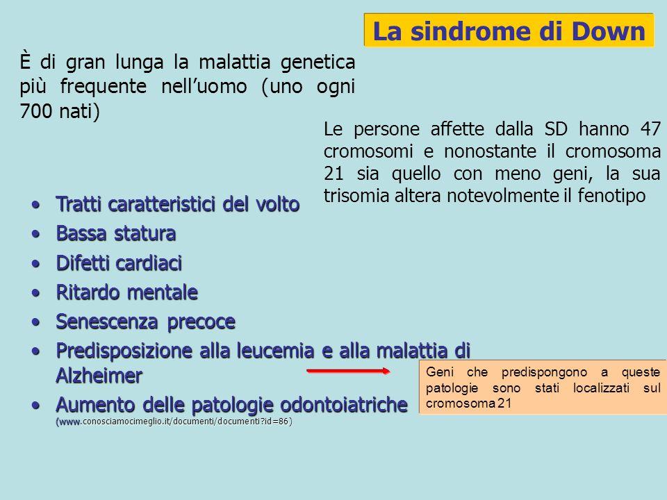 La sindrome di Down È di gran lunga la malattia genetica più frequente nelluomo (uno ogni 700 nati) Le persone affette dalla SD hanno 47 cromosomi e nonostante il cromosoma 21 sia quello con meno geni, la sua trisomia altera notevolmente il fenotipo Tratti caratteristici del voltoTratti caratteristici del volto Bassa staturaBassa statura Difetti cardiaciDifetti cardiaci Ritardo mentaleRitardo mentale Senescenza precoceSenescenza precoce Predisposizione alla leucemia e alla malattia di AlzheimerPredisposizione alla leucemia e alla malattia di Alzheimer Aumento delle patologie odontoiatriche (www.conosciamocimeglio.it/documenti/documenti?id=86)Aumento delle patologie odontoiatriche (www.conosciamocimeglio.it/documenti/documenti?id=86) Geni che predispongono a queste patologie sono stati localizzati sul cromosoma 21