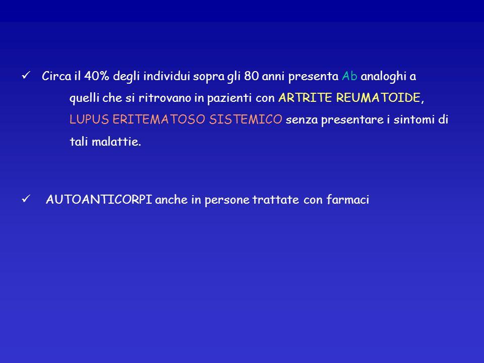 TIROIDITE DI HASHIMOTO Tiroidite autoimmune IPOTIROIDISMO Progressiva distruz.