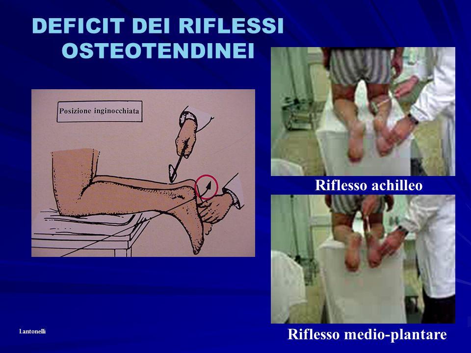 DEFICIT DEI RIFLESSI OSTEOTENDINEI Riflesso achilleo l.antonelli Riflesso medio-plantare