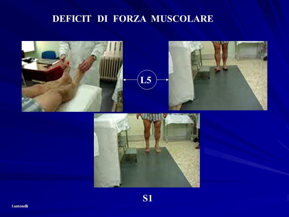 DEFICIT DI FORZA MUSCOLARE L5 S1 l.antonelli