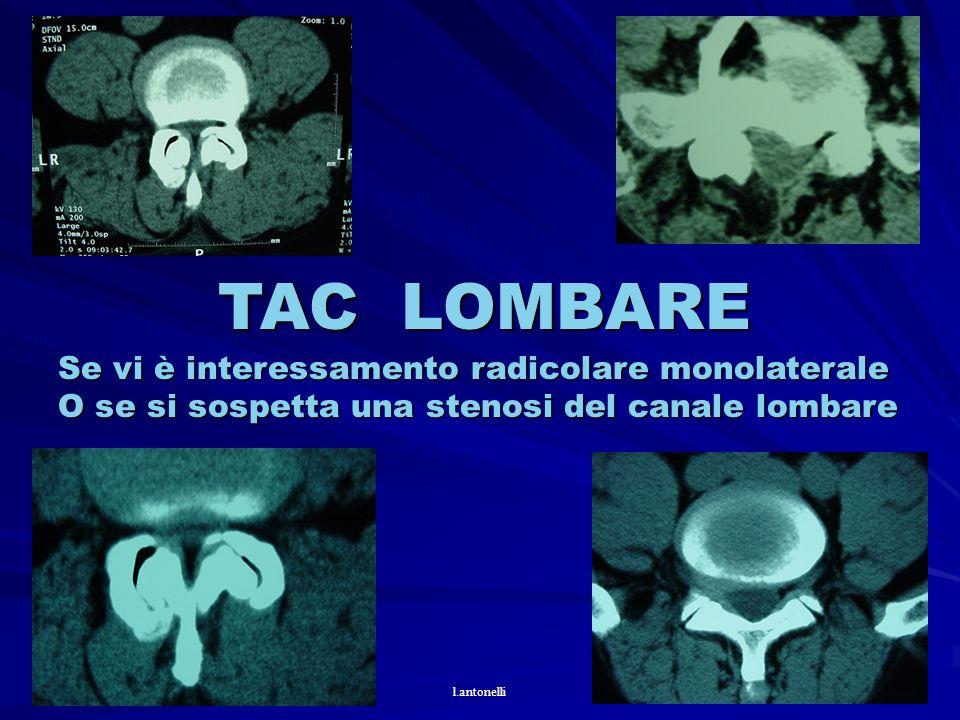 TAC LOMBARE Se vi è interessamento radicolare monolaterale O se si sospetta una stenosi del canale lombare l.antonelli