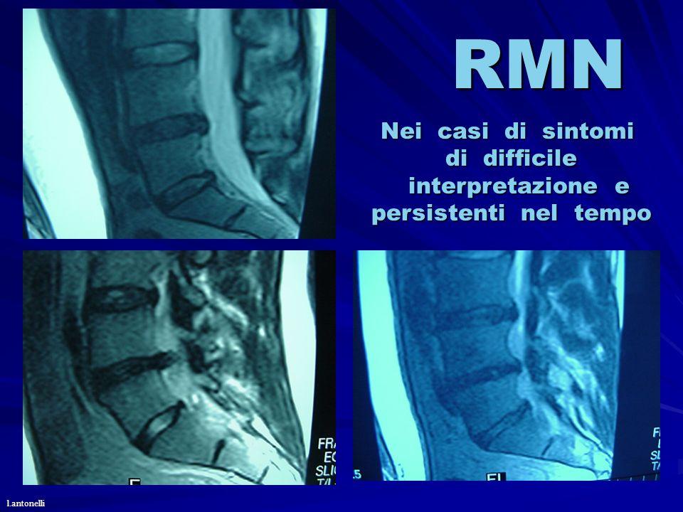 RMN Nei casi di sintomi di difficile interpretazione e interpretazione e persistenti nel tempo l.antonelli