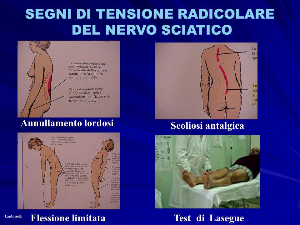 SEGNI DI TENSIONE RADICOLARE DEL NERVO SCIATICO Annullamento lordosi Flessione limitata Scoliosi antalgica Test di Lasegue l.antonelli