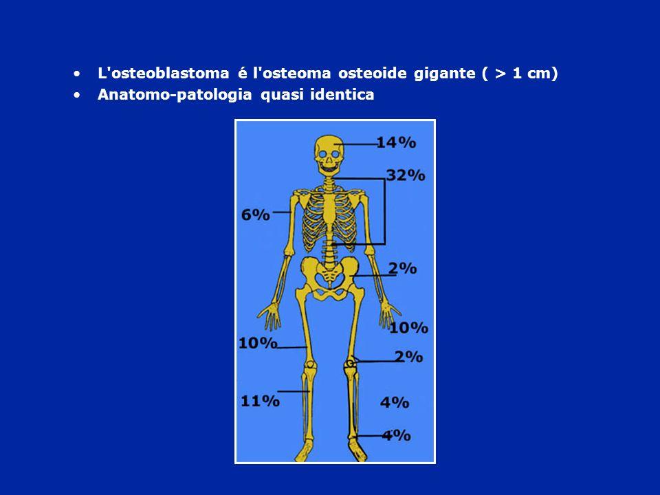 L'osteoblastoma é l'osteoma osteoide gigante ( > 1 cm) Anatomo-patologia quasi identica