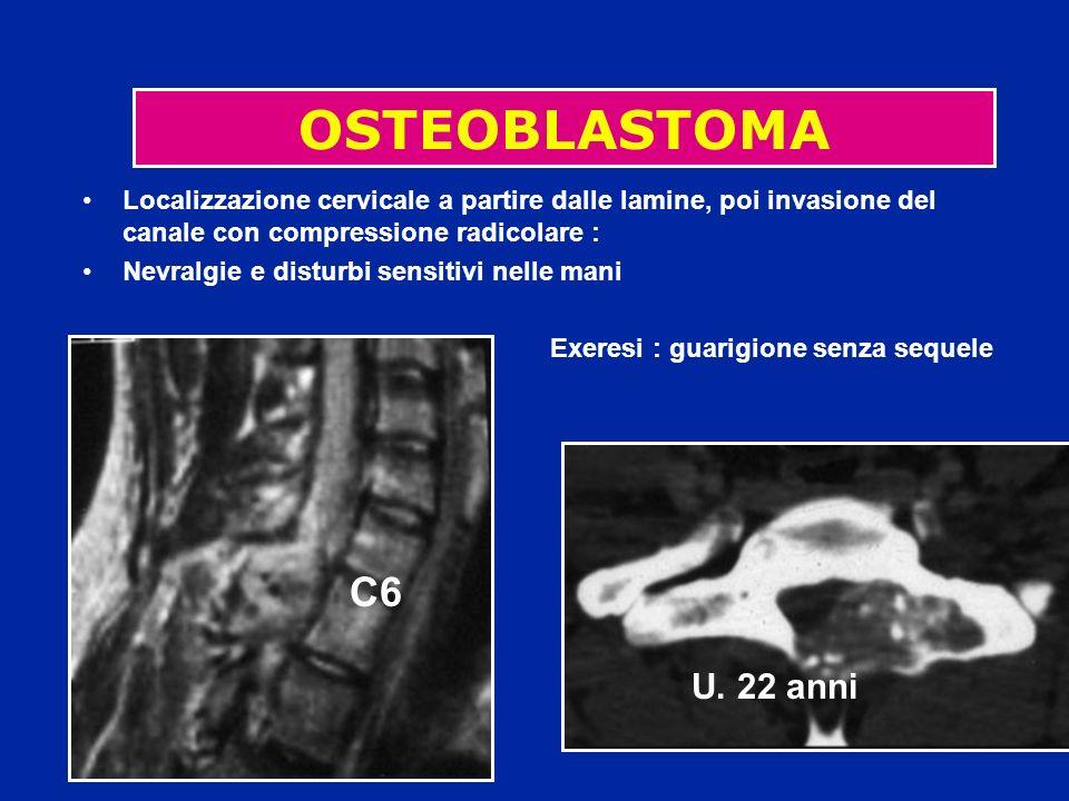 Localizzazione cervicale a partire dalle lamine, poi invasione del canale con compressione radicolare : Nevralgie e disturbi sensitivi nelle mani Exer