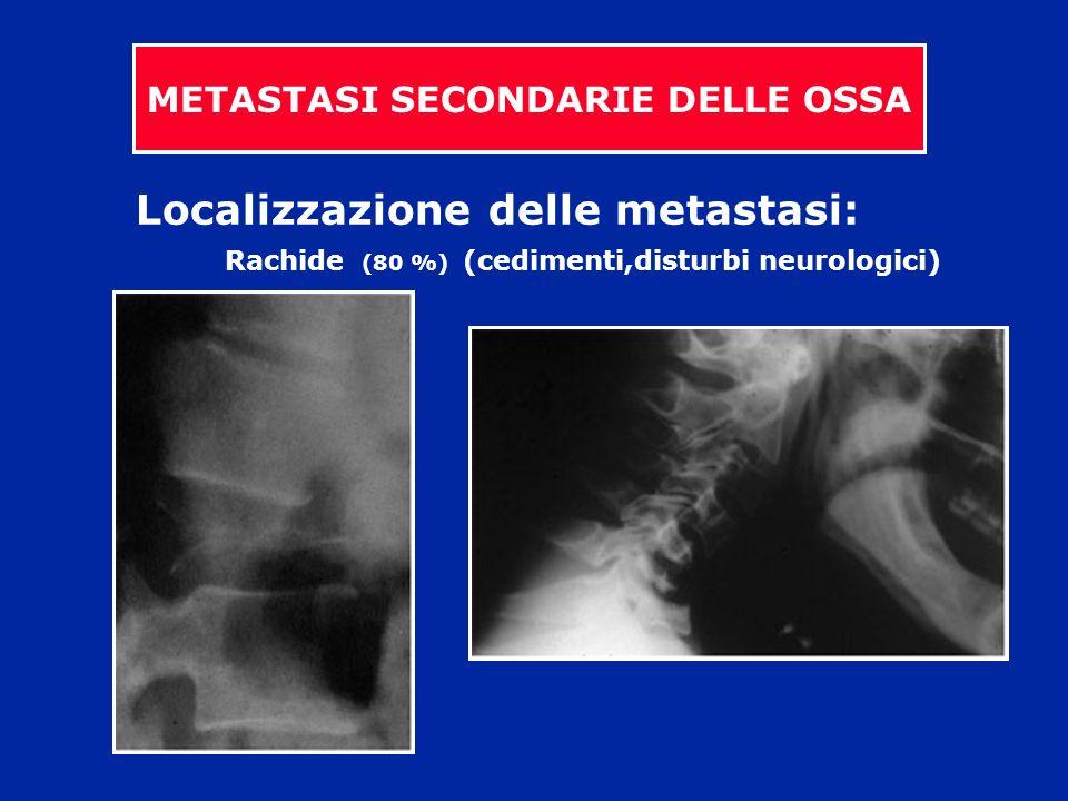 Localizzazione delle metastasi: Rachide (80 %) (cedimenti,disturbi neurologici) METASTASI SECONDARIE DELLE OSSA
