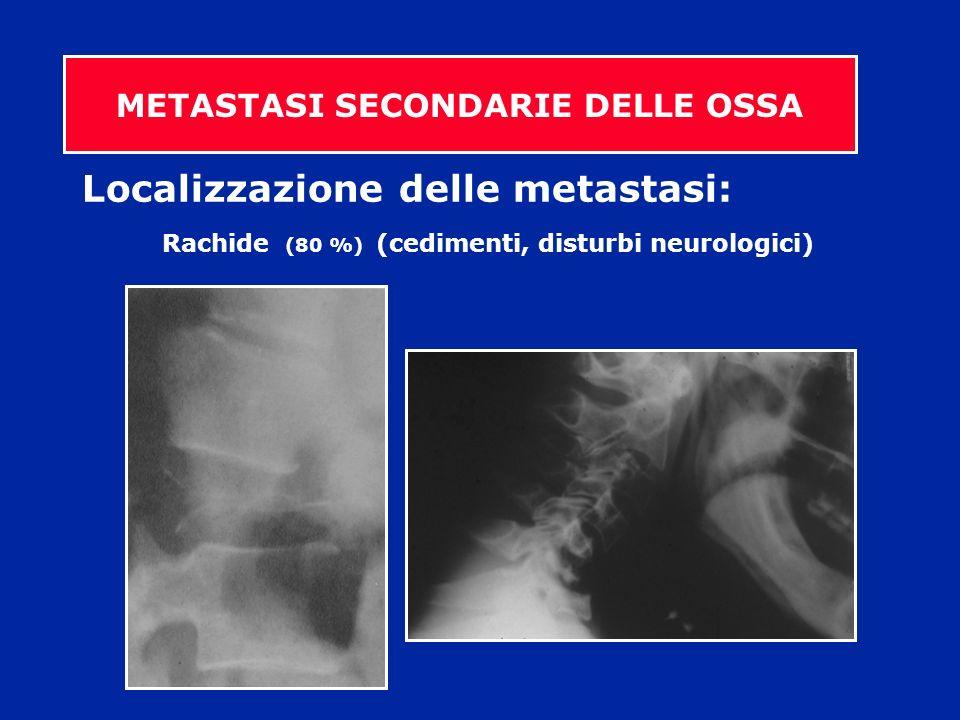 Localizzazione delle metastasi: Rachide (80 %) (cedimenti, disturbi neurologici)
