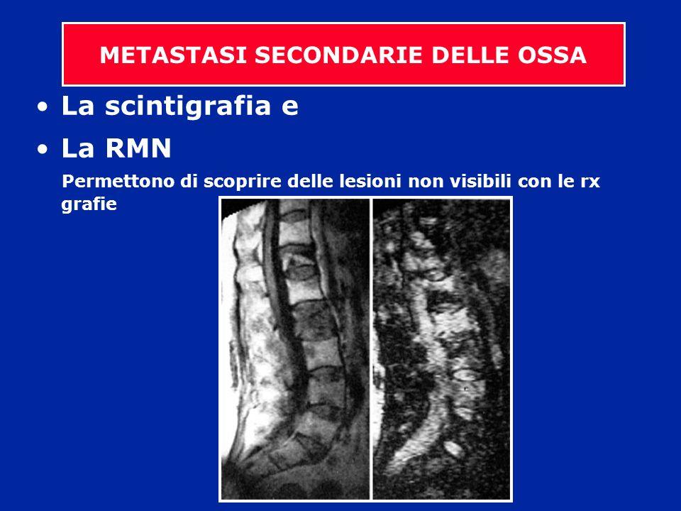 La scintigrafia e La RMN Permettono di scoprire delle lesioni non visibili con le rx grafie METASTASI SECONDARIE DELLE OSSA