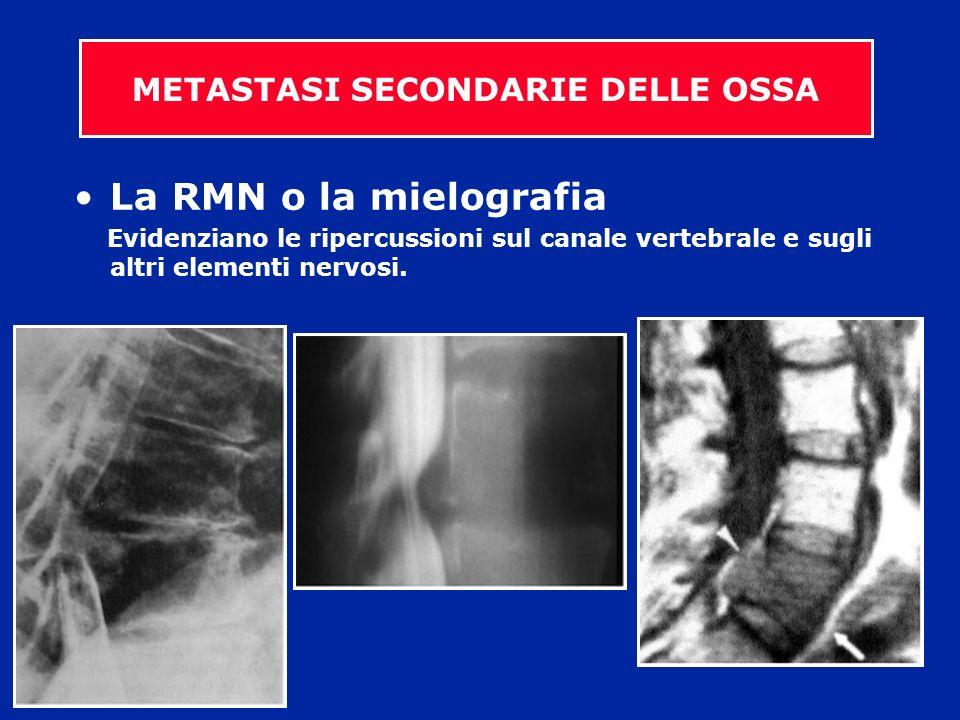 La RMN o la mielografia Evidenziano le ripercussioni sul canale vertebrale e sugli altri elementi nervosi. METASTASI SECONDARIE DELLE OSSA