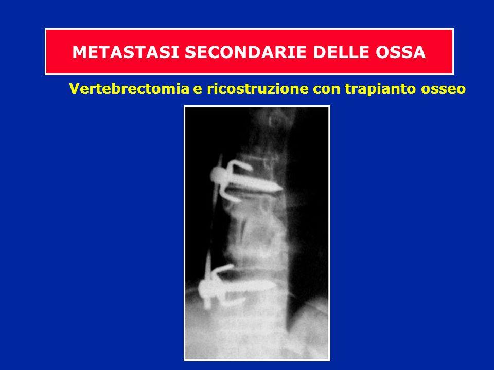 Vertebrectomia e ricostruzione con trapianto osseo METASTASI SECONDARIE DELLE OSSA