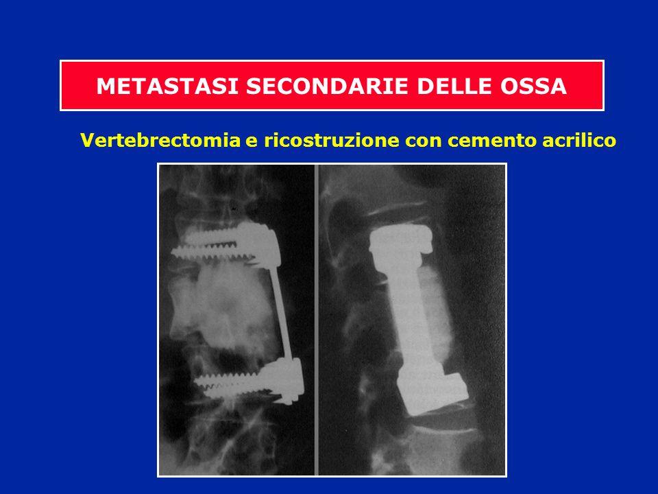 Vertebrectomia e ricostruzione con cemento acrilico METASTASI SECONDARIE DELLE OSSA
