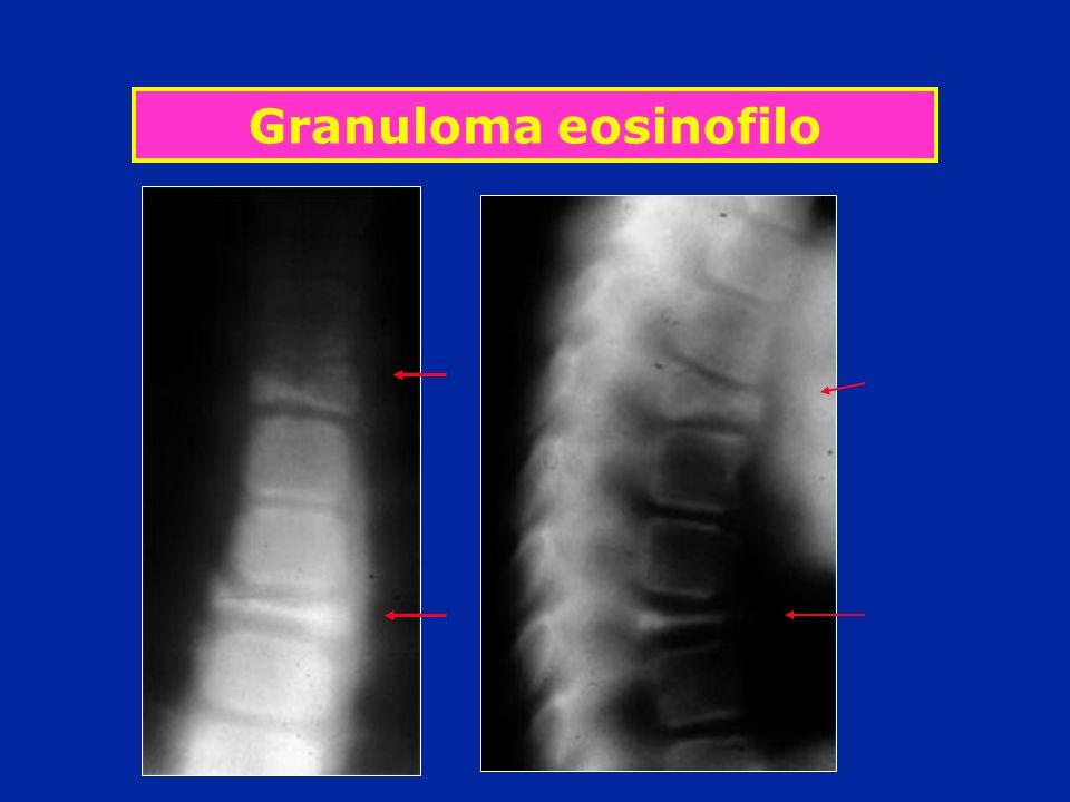 Granuloma eosinofilo
