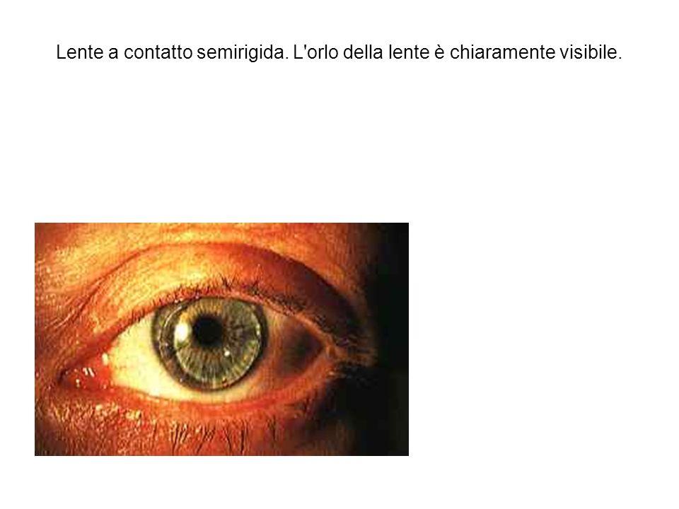 Lente a contatto semirigida. L'orlo della lente è chiaramente visibile.