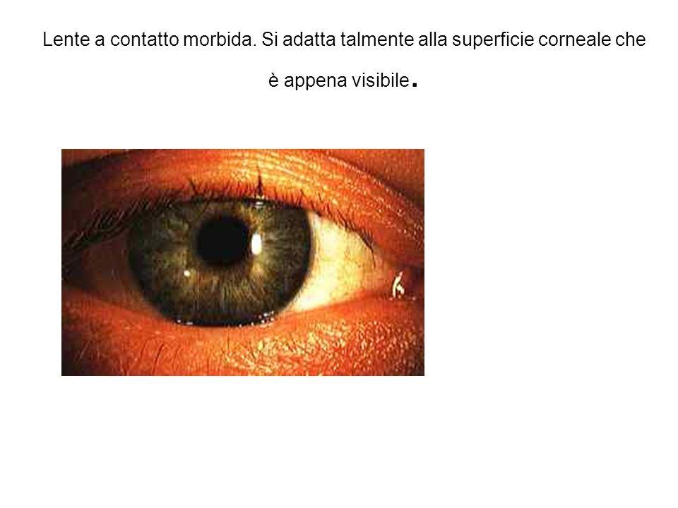 Lente a contatto morbida. Si adatta talmente alla superficie corneale che è appena visibile.