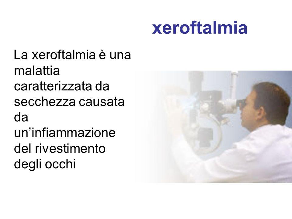 xeroftalmia La xeroftalmia è una malattia caratterizzata da secchezza causata da uninfiammazione del rivestimento degli occhi