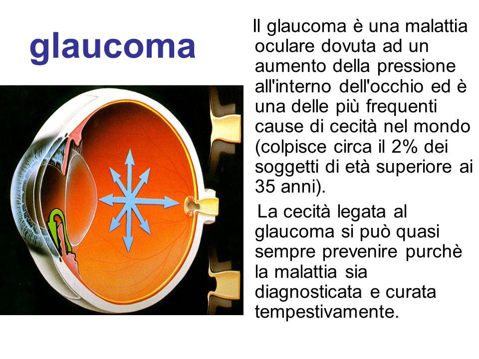 glaucoma Il glaucoma è una malattia oculare dovuta ad un aumento della pressione all'interno dell'occhio ed è una delle più frequenti cause di cecità