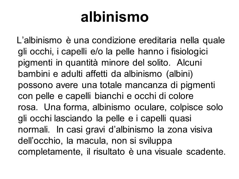 albinismo Lalbinismo è una condizione ereditaria nella quale gli occhi, i capelli e/o la pelle hanno i fisiologici pigmenti in quantità minore del sol