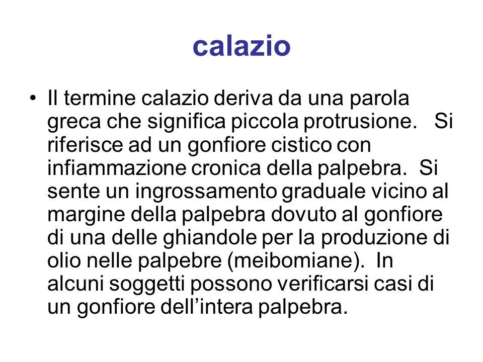 calazio Il termine calazio deriva da una parola greca che significa piccola protrusione. Si riferisce ad un gonfiore cistico con infiammazione cronica