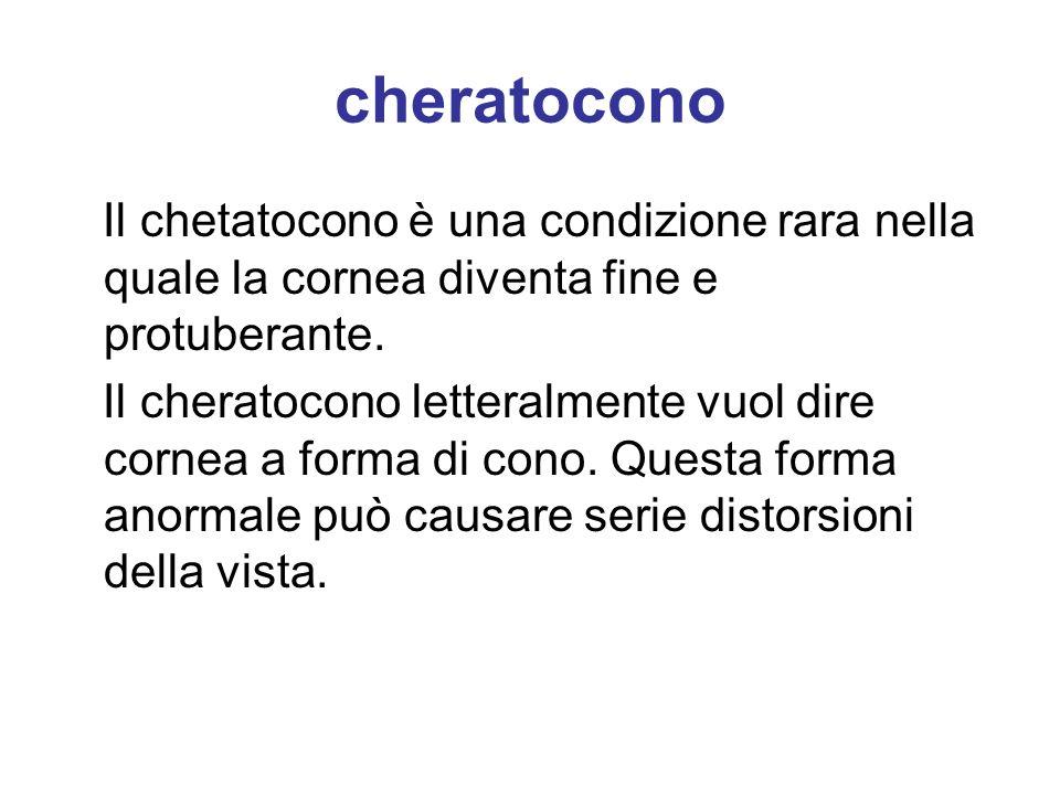 cheratocono Il chetatocono è una condizione rara nella quale la cornea diventa fine e protuberante. Il cheratocono letteralmente vuol dire cornea a fo