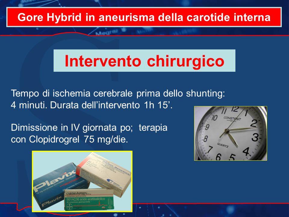 Gore Hybrid in aneurisma della carotide interna Tempo di ischemia cerebrale prima dello shunting: 4 minuti.