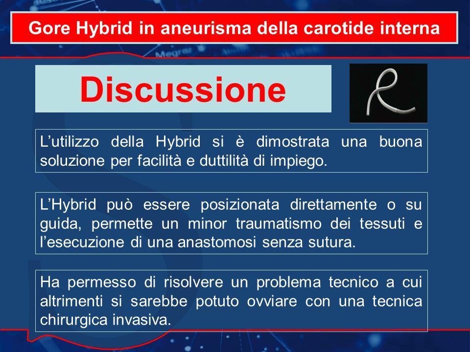 Gore Hybrid in aneurisma della carotide interna Discussione Lutilizzo della Hybrid si è dimostrata una buona soluzione per facilità e duttilità di impiego.