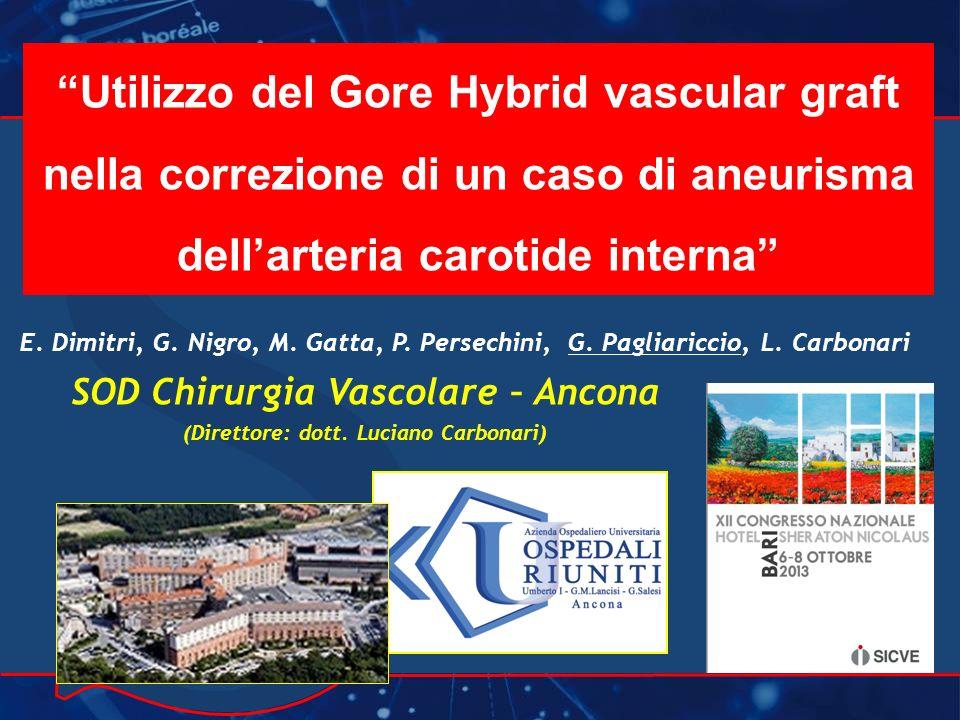 Gore Hybrid in aneurisma della carotide interna Paziente di 72 aa in buona salute.