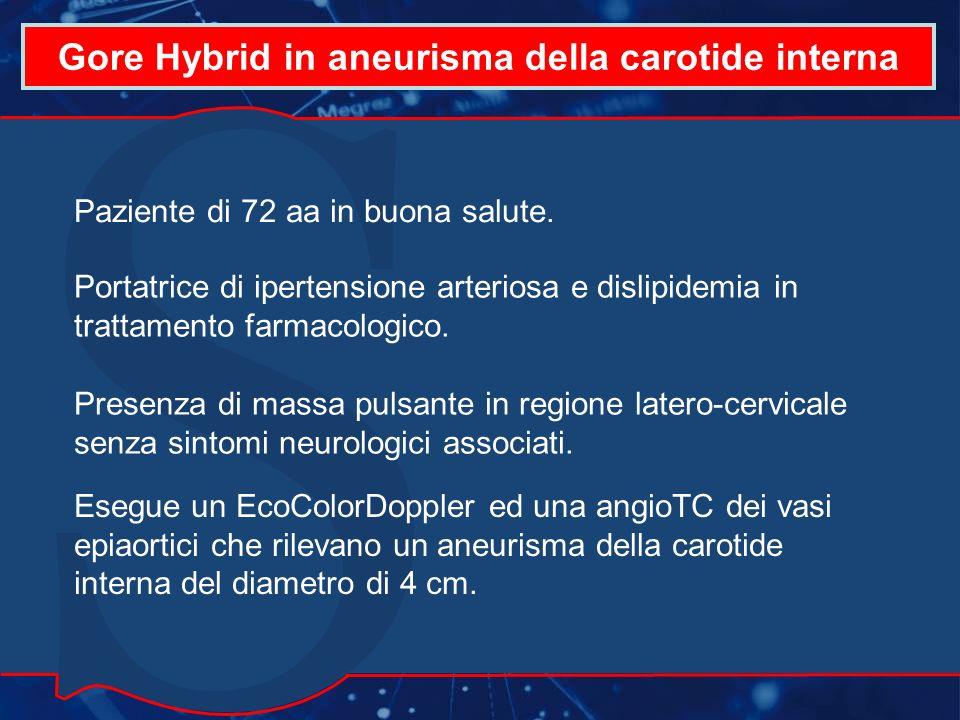Gore Hybrid in aneurisma della carotide interna Conclusioni Il caso clinico riportato rileva come sia possibile lutilizzo della protesi Gore Hybrid in caso di aneurisma della carotide interna ad estensione distale.