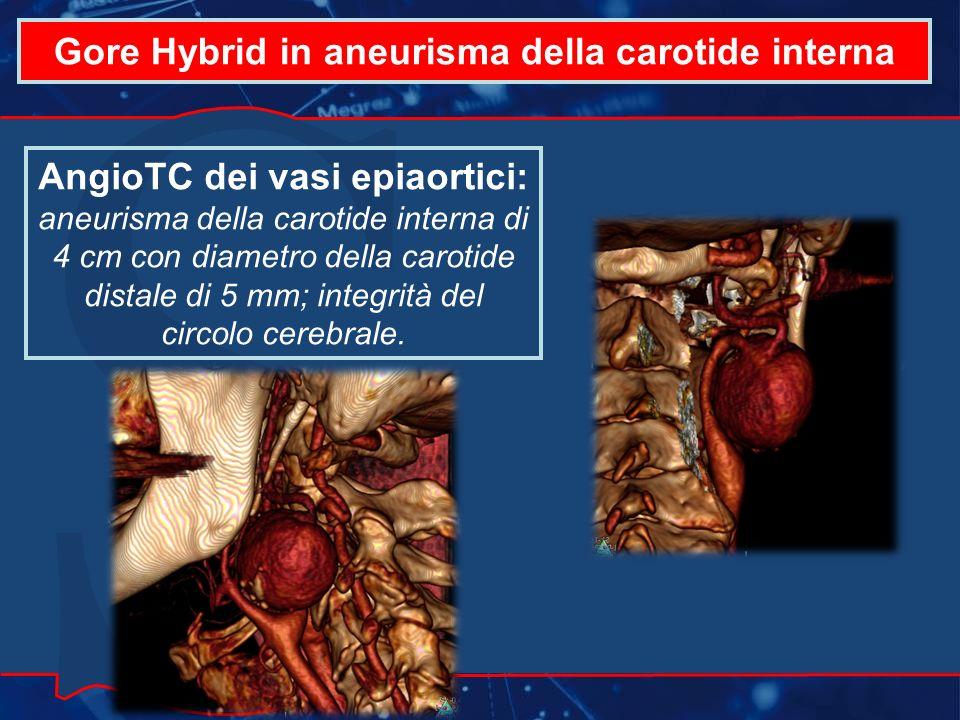 Gore Hybrid in aneurisma della carotide interna AngioTC dei vasi epiaortici: aneurisma della carotide interna di 4 cm con diametro della carotide distale di 5 mm; integrità del circolo cerebrale.