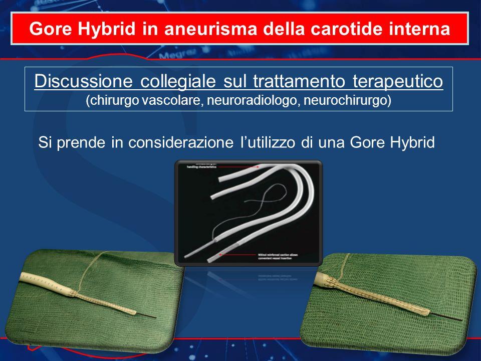 Gore Hybrid in aneurisma della carotide interna Discussione collegiale sul trattamento terapeutico (chirurgo vascolare, neuroradiologo, neurochirurgo) Si prende in considerazione lutilizzo di una Gore Hybrid