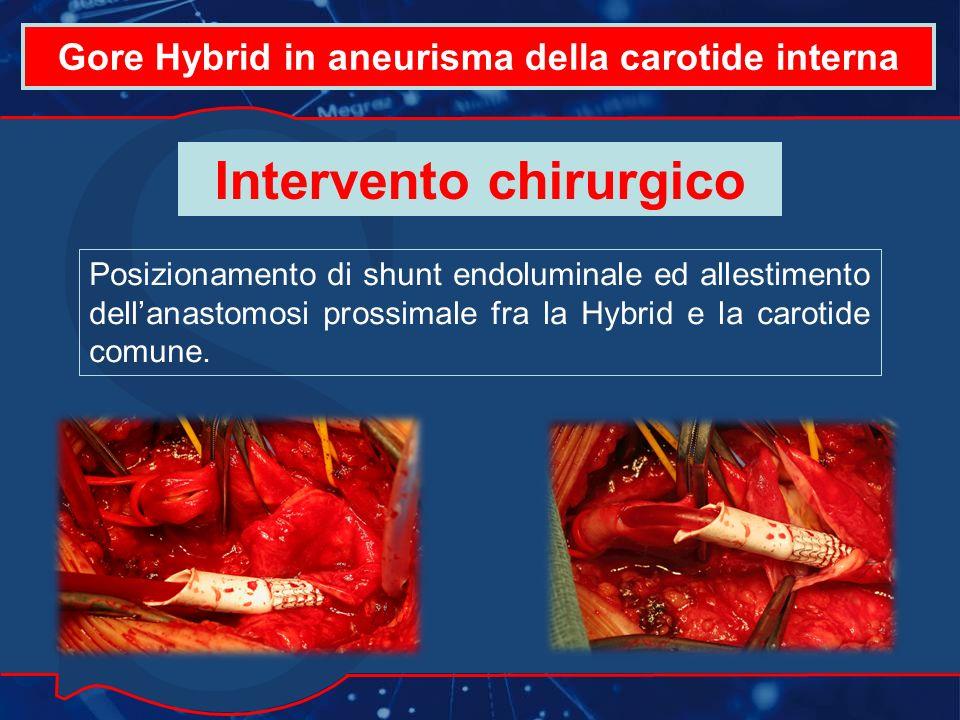 Gore Hybrid in aneurisma della carotide interna Posizionamento di shunt endoluminale ed allestimento dellanastomosi prossimale fra la Hybrid e la carotide comune.