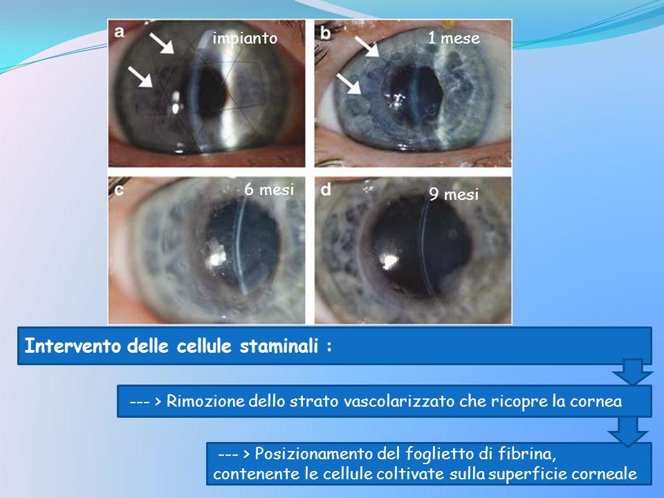 impianto1 mese 6 mesi 9 mesi Intervento delle cellule staminali : --- > Rimozione dello strato vascolarizzato che ricopre la cornea --- > Posizionamen