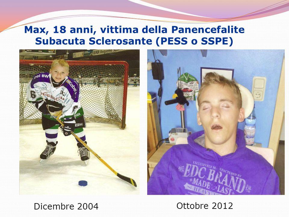 Max, 18 anni, vittima della Panencefalite Subacuta Sclerosante (PESS o SSPE) Dicembre 2004 Ottobre 2012