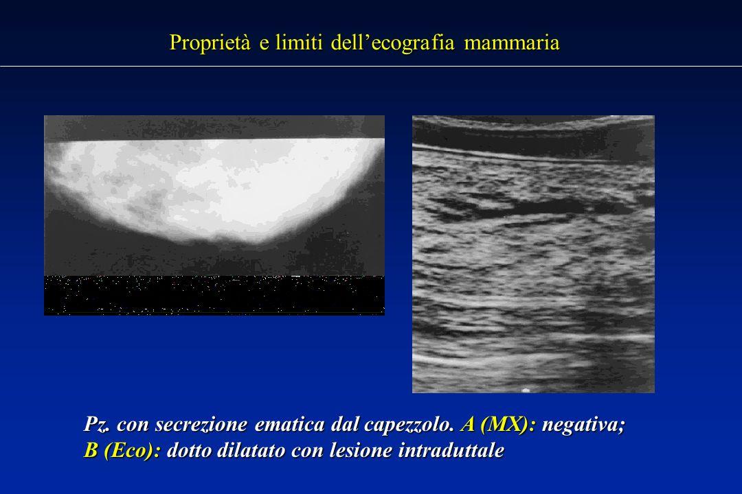 Proprietà e limiti dellecografia mammaria Pz.con secrezione ematica dal capezzolo.