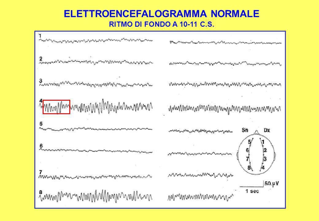 ELETTROENCEFALOGRAMMA NORMALE RITMO DI FONDO A 10-11 C.S.